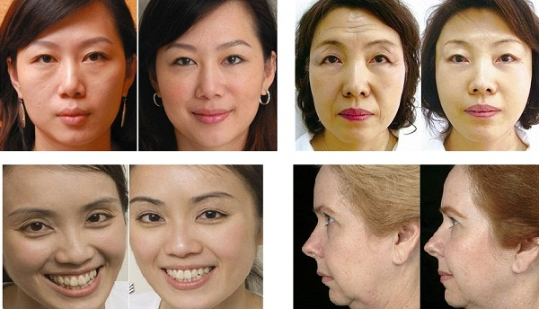 Portable Radio Frequency Face Lift Device / Thermage Facelift