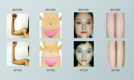 Remove face fat without surgery picture 10